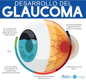 Esquema del glaucoma