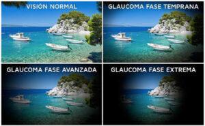 Ejemplo de vision con glaucoma